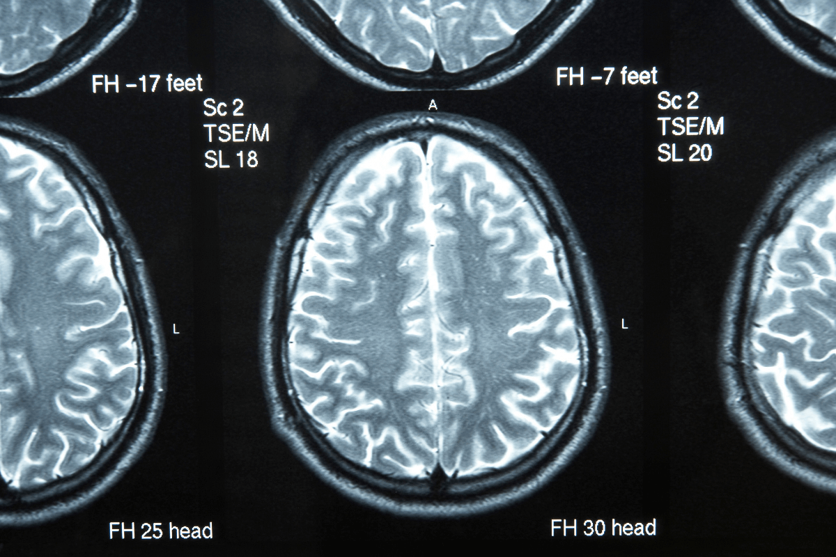 Image scan of a brain. Doctors use brain scanners to check for brain health.